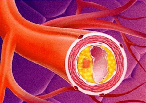 infiammazione vasi sanguigni rischio cardiovascolare e suoi f