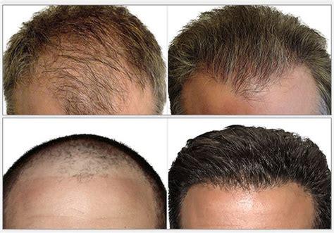 hair transplant center nyc hair transplantations nyc hair transplant surgeon hair restoration nyc
