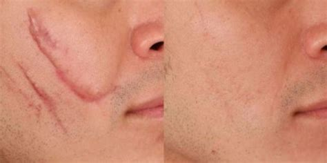 best medicine to remove scars 25 best ideas about keloid scar removal on