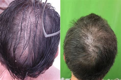 balding hair crowns crown hair restoration dermhair clinic los angeles 1 310