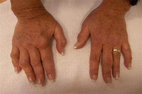 herbal remedies  arthritis  herbs