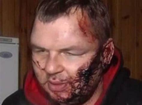 haircut express ukraine torture tales of ukraine s gangs world news express