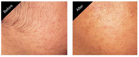 brazilian hair removal pictures brazilian laser hair removal before and after photos