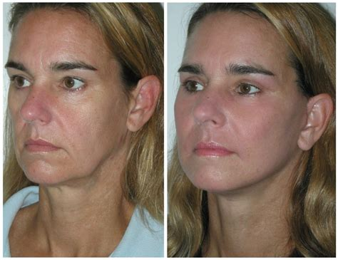 contour sagging jowls ftc pdo thread lifting non surgical face lift skin