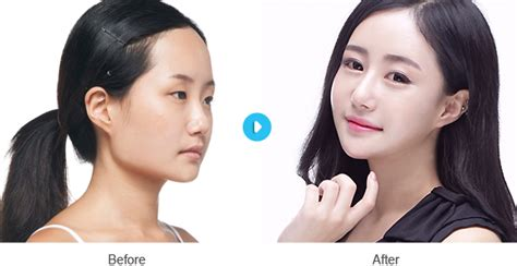 v shape jaw surgery facelift rhytidectomy lock the v line v fix facelift