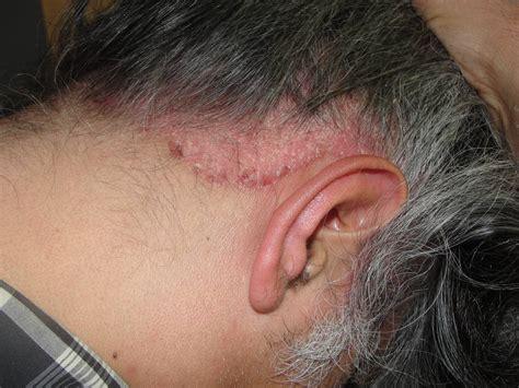 herpes zoster cuero cabelludo medicina aps mayo 2010
