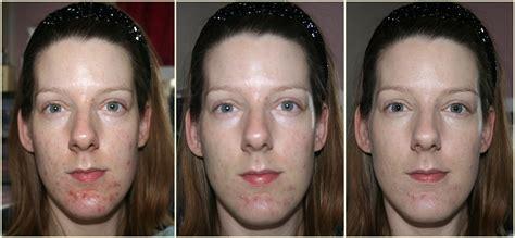 Makeup Primer Makeover makeup forever reviews acne mugeek vidalondon