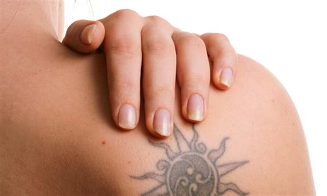 tattoo removal deals fade away laser removal up to 77 duluth