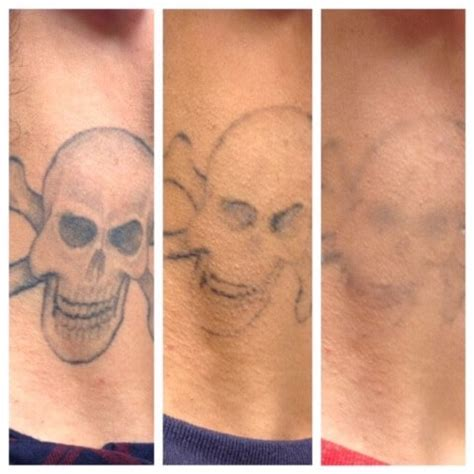 tattoo removal how many sessions laser removal treasure coast laser aesthetics