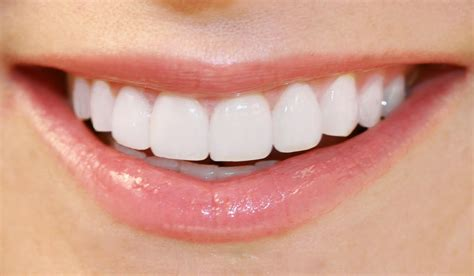 teeth of the take the easy way out of crooked teeth philly dentistry
