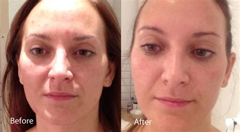 led light therapy before and after nakedhealth medispa dermalux