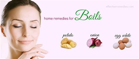 top 22 home remedies for boils on skin