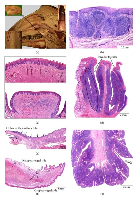 tonsils revisited review   anatomical localization  histological characteristics