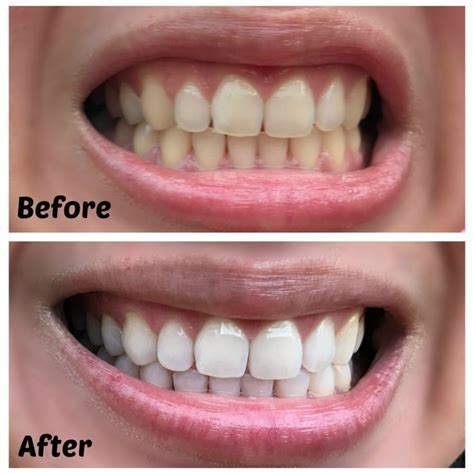 71 best Teeth Whitening Before & After Results images on