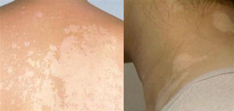 porque salen manchas en la cara por qu 233 salen manchas blancas en la piel causas y tratamiento