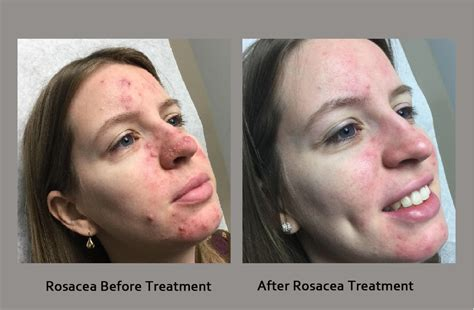 best treatment for acne rosacea rosacea treatment goodman dermatology