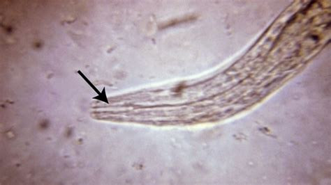 Larvae In Human Stool by Parasitic Worms A Retro Cure For Autoimmune Diseases