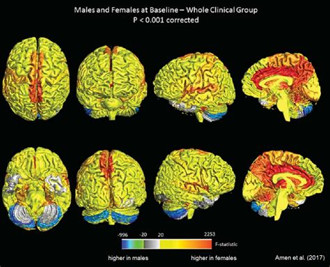 brain size brains are more active neuroskeptic