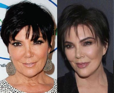 marys extreme makeover face nose and body cosmetic surgery beverly hills best plastic surgeon in