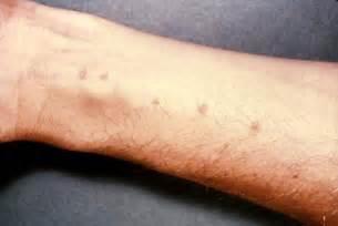pseudomonas im stuhl human intestinal worms symptoms pictures treatment