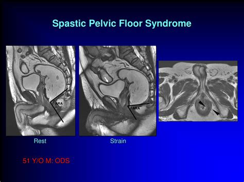 Pelvic Floor Problems by Ppt Mri In Pelvic Floor Disorders Powerpoint
