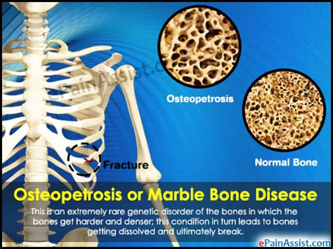 Home Remodling by Osteopetrosis Or Marble Bone Disease Treatment Causes