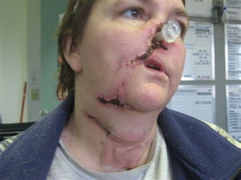 sudden random unprovoked violent  dogs bite