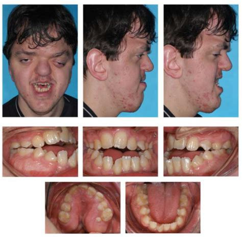 orthognathic surgery age 50 and over age 16 1 end of treatment after 29 months tooth posit