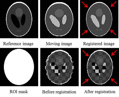 image registration dce mri registration based on deconvolution of joint
