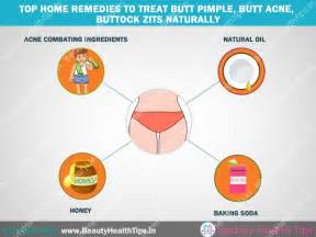 how to remove acne on buttocks pimples buttock zits