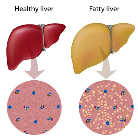 Belviq Also Search For Gene Linked To Liver Cancer Also Involved Obesity