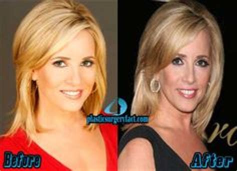 mika brzezinski plastic surgery before and after pictures vanities this morning and just stop on pinterest
