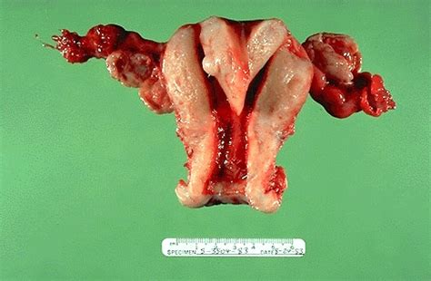 pictures of vigina female genital pathology