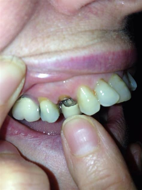 dental fistula symptoms things you didn t