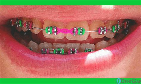 braces rubber band colors power chain braces purpose varieties and results