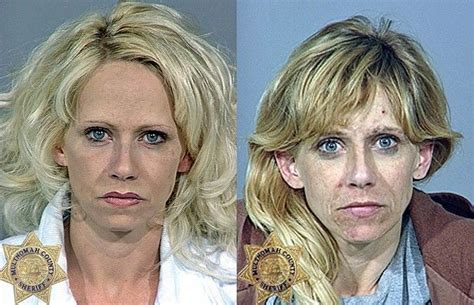Medicine Detox Meth by 37 Best Images About Before And After Drugs On