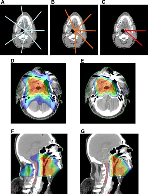Proton Radiotherapy by Comparison Of Intensity Modulated Radiotherapy Adaptive