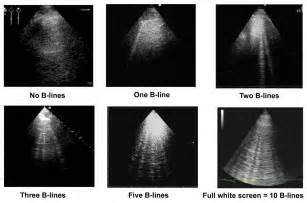 b linens lung ultrasound a new tool for the cardiologist