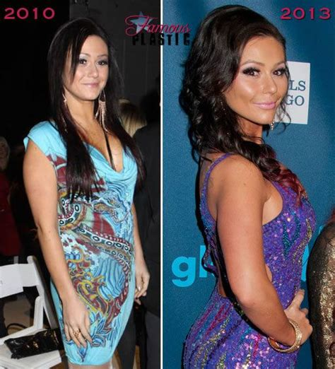 jenni jwoww before and after plastic surgery breast celebrity plastic surgery 10 handpicked ideas to