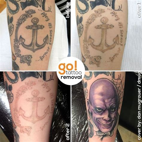 tattoo removal pinterest 1000 images about tattoo removal to tattoo cover up on