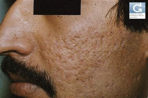 diode laser for acne scars acne scars lasers used to treat them for professionals 171 globale dermatologie