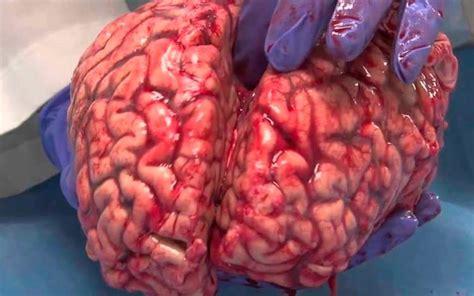 imagenes reales cerebro humano transplante de c 233 rebro poder 225 ser feito at 233 2020 afirma