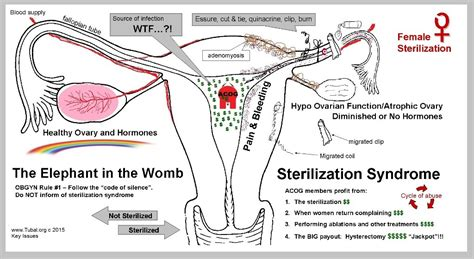 c section and tubal ligation cycle of abuse sterilization essure tubal ligation and