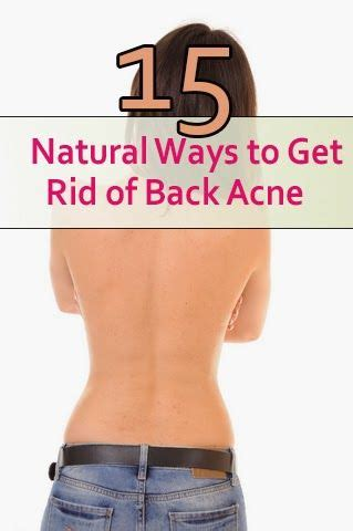 15 Top Foods To Get Rid Of Acne by 421543 Best Fashion Images On