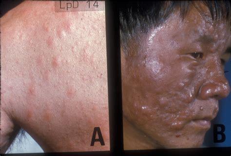 leprosy skin lesions leprosy lepromatous leprosy cutaneous leprosy nodular