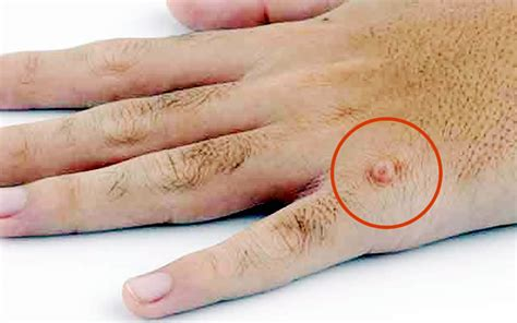 how to treat warts easily wise home remedies