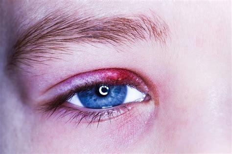 orzaiolo interno occhio orzaiolo perch 233 viene questa ciste nell occhio lisi
