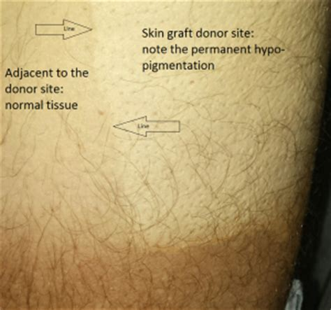 tattoo removal skin graft skin graft removal versus picosure austinpicosure