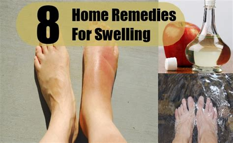 8 swelling home remedies treatments and cure search