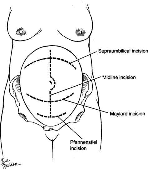 types of cesarean section anatomy incisions and closures obgyn key